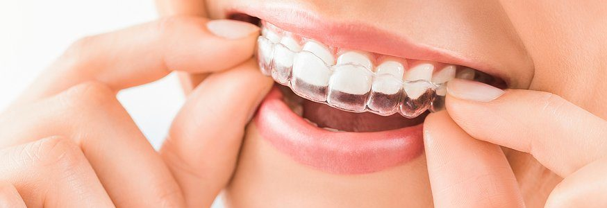 Invisalign Dentist Melbourne – Your Smile Can Become Your Great Strength