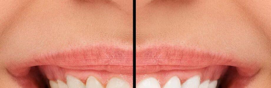 Benefits and Procedure for Installing Dental Veneers