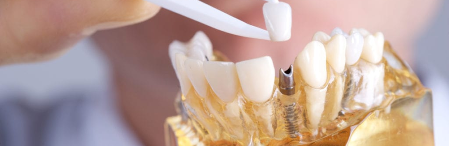 How to Organize Your Dental Implant Surgery